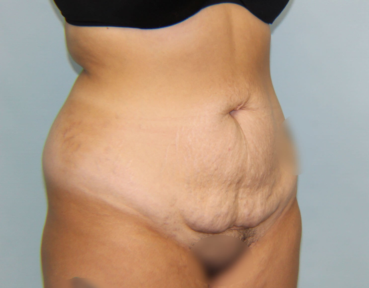 Tummy tuck - oblique Before