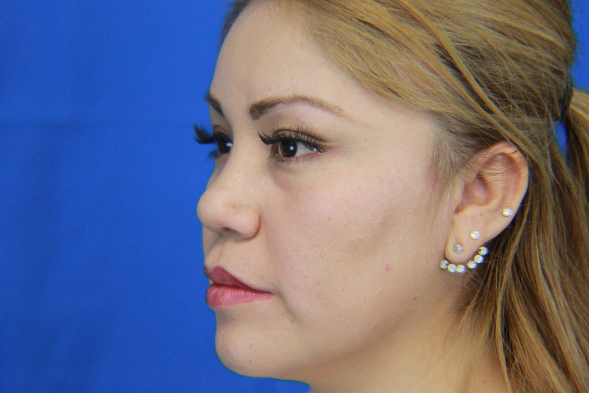 Hispanic Rhinoplasty After