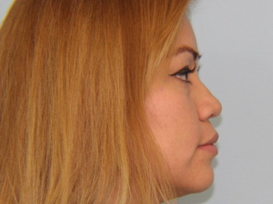 Hispanic Rhinoplasty Before