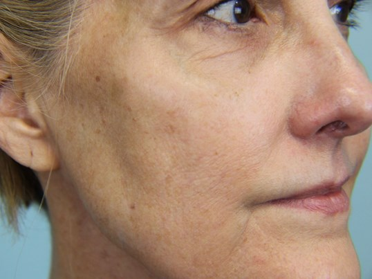 Facial Peel Before