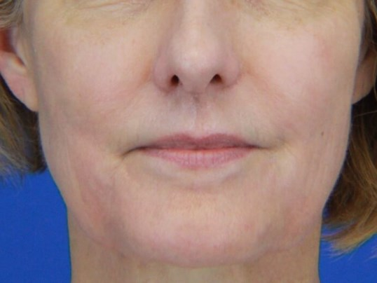 Facial Peel After