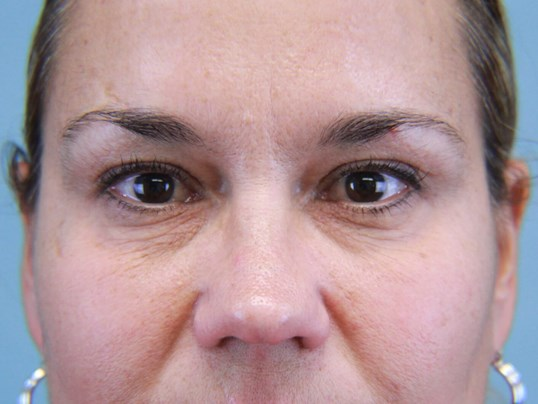 Facial Fillers to Tear Troughs Before