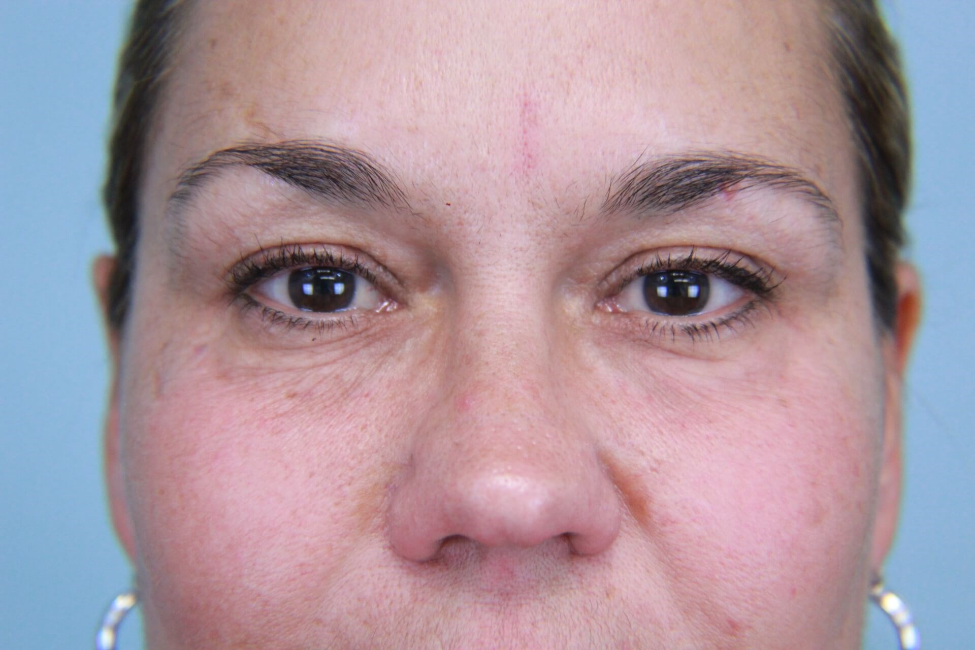 Facial Fillers to Tear Troughs After