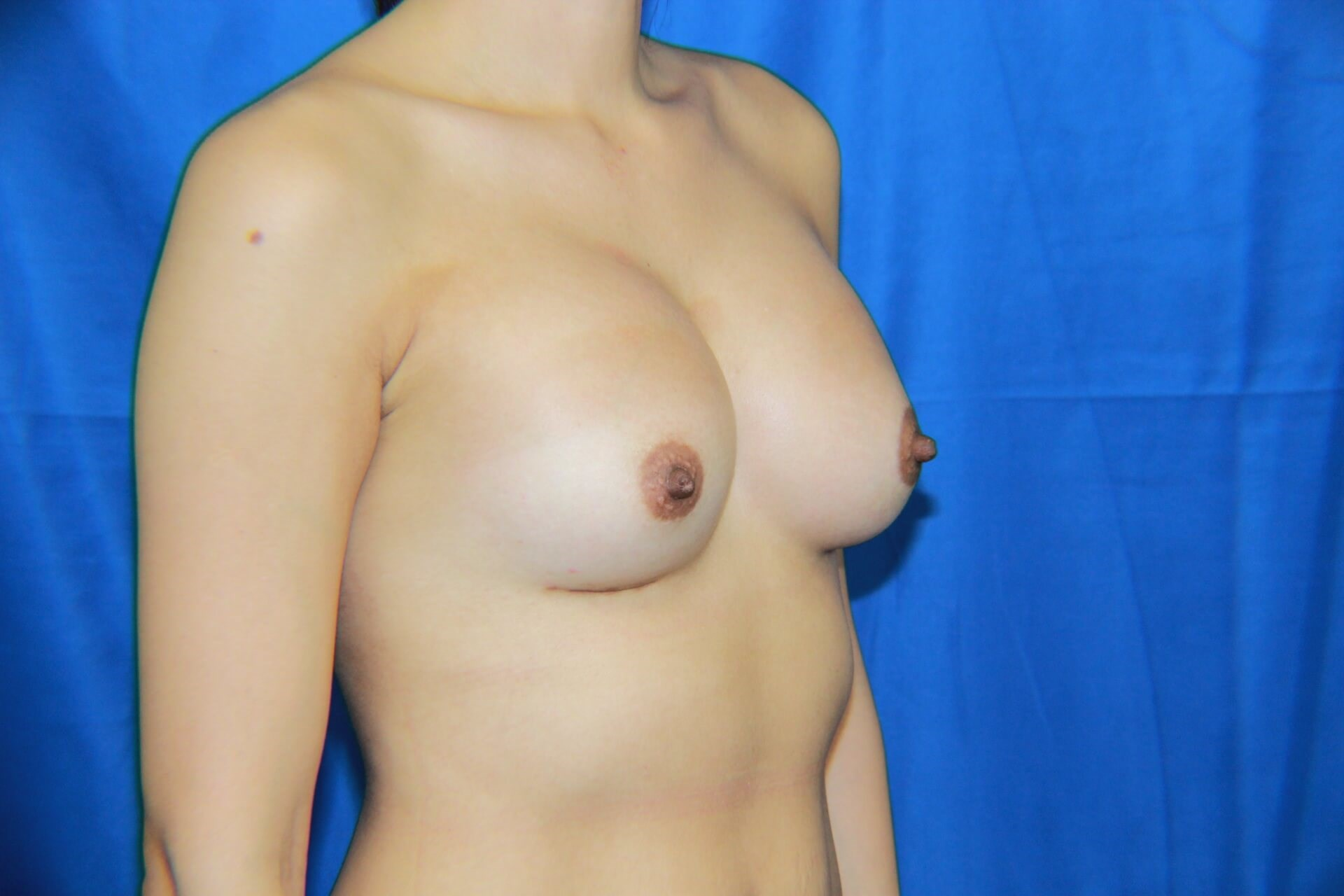 Right View Breast Augmentation After