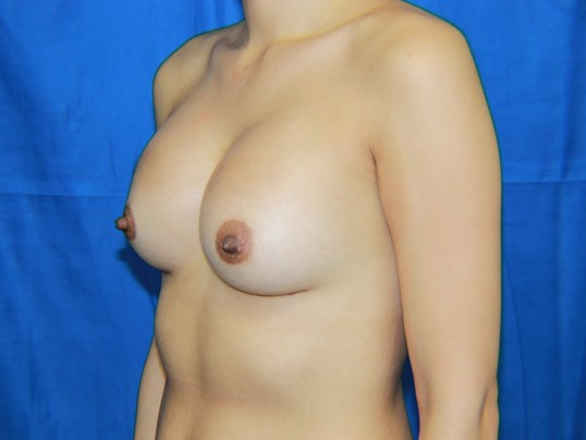 Left View Breast Augmentation After