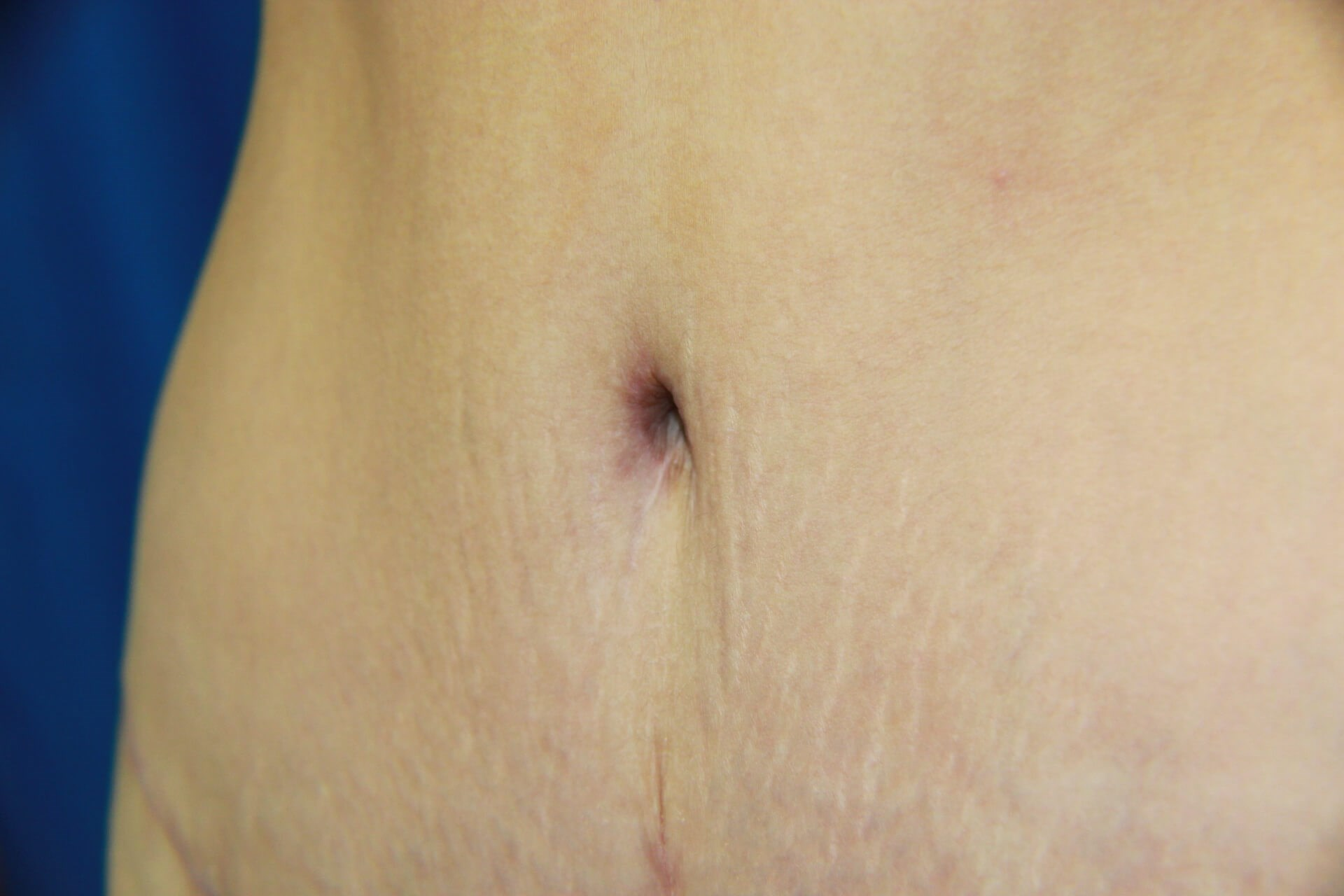 Belly button After Surgery Side View