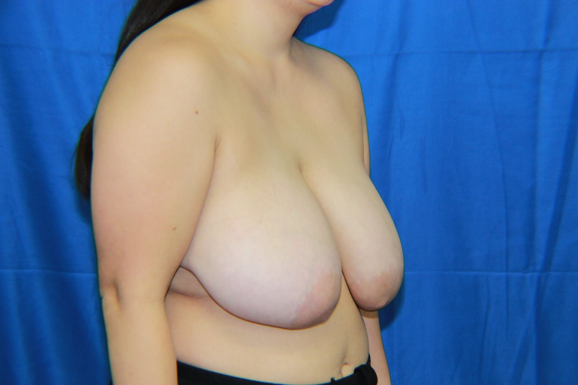 Breast Lift - Las Vegas Before