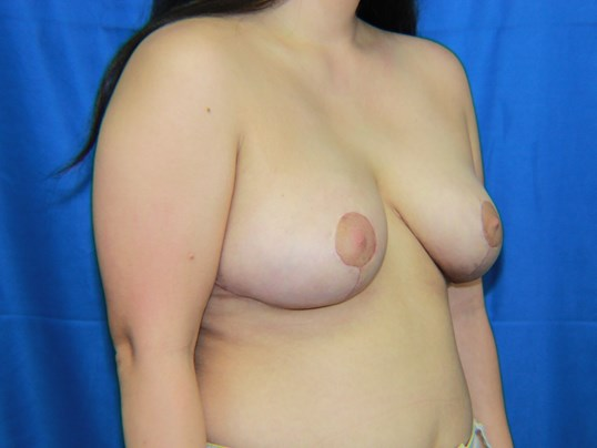 Breast Lift - Las Vegas After