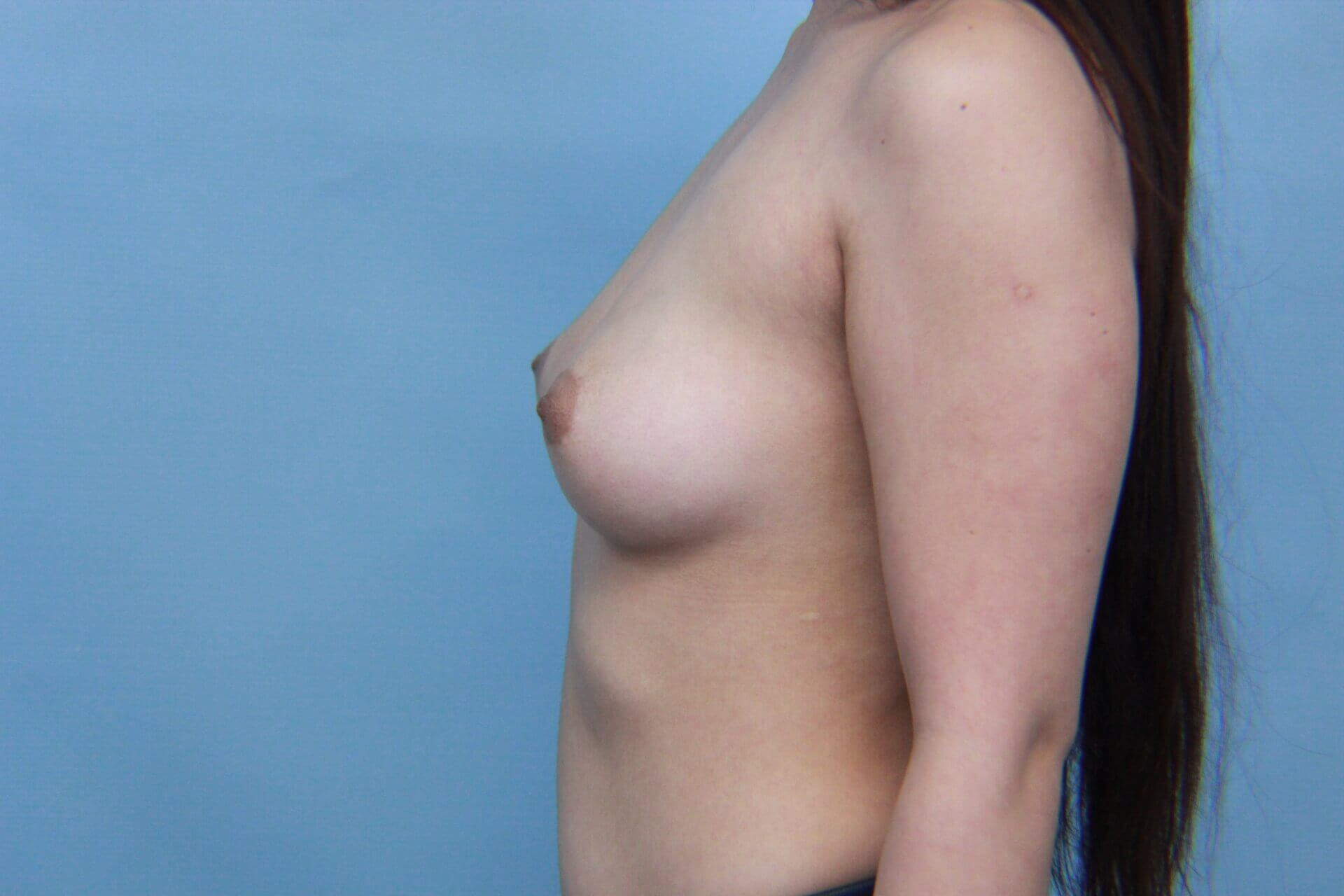 Transaxillary Breast Aug Before