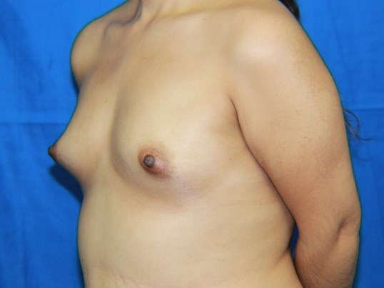 Hispanic Breast Augmentation Before