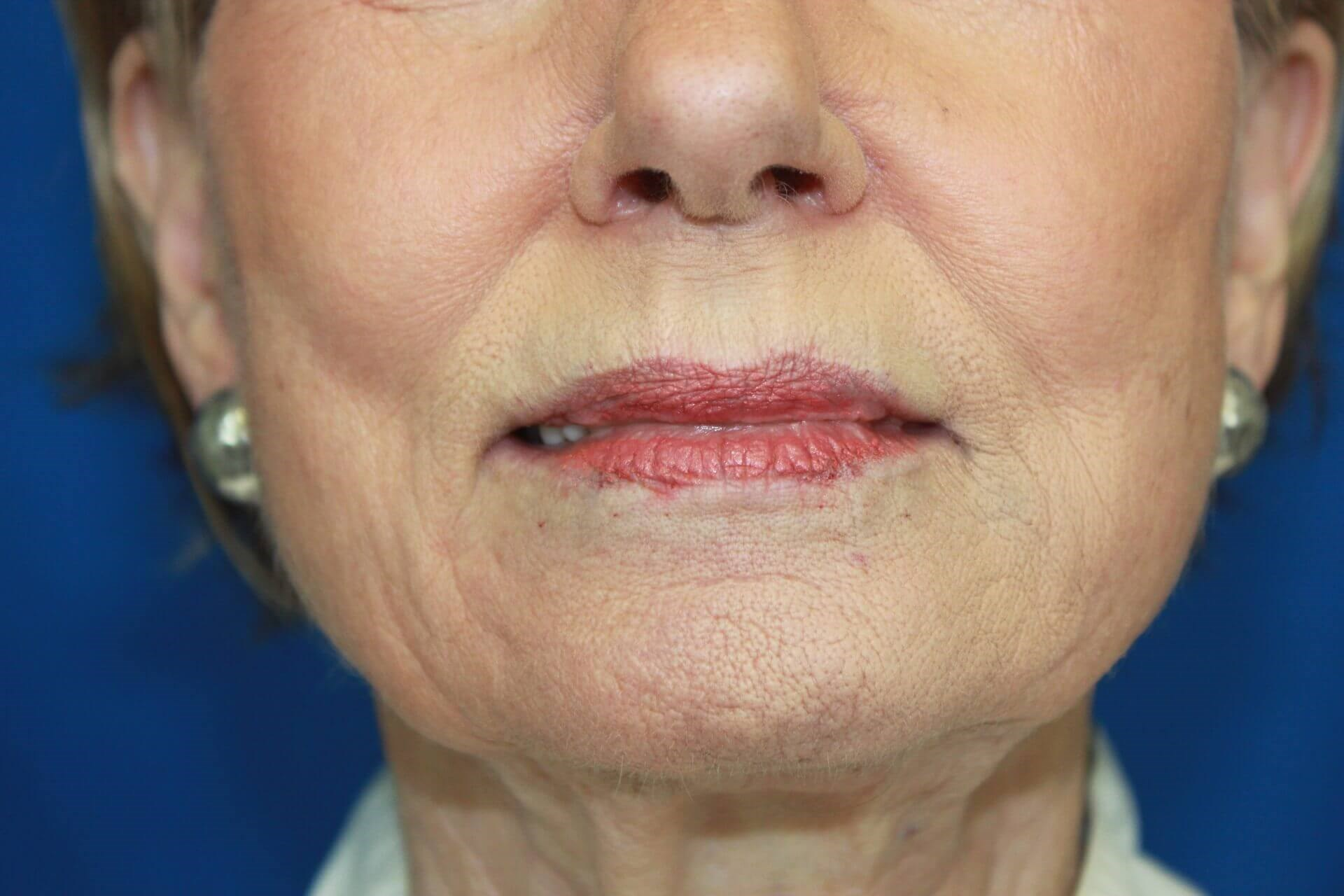 Restylane Filler for Lip Lines After