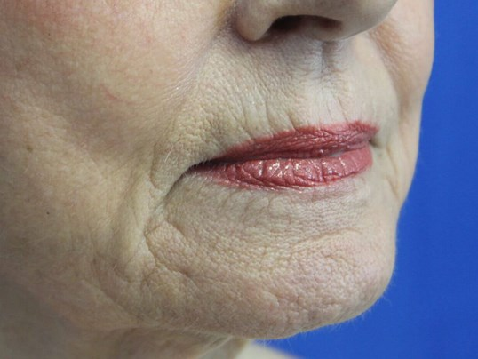 Restylane Filler for Lip Lines Before