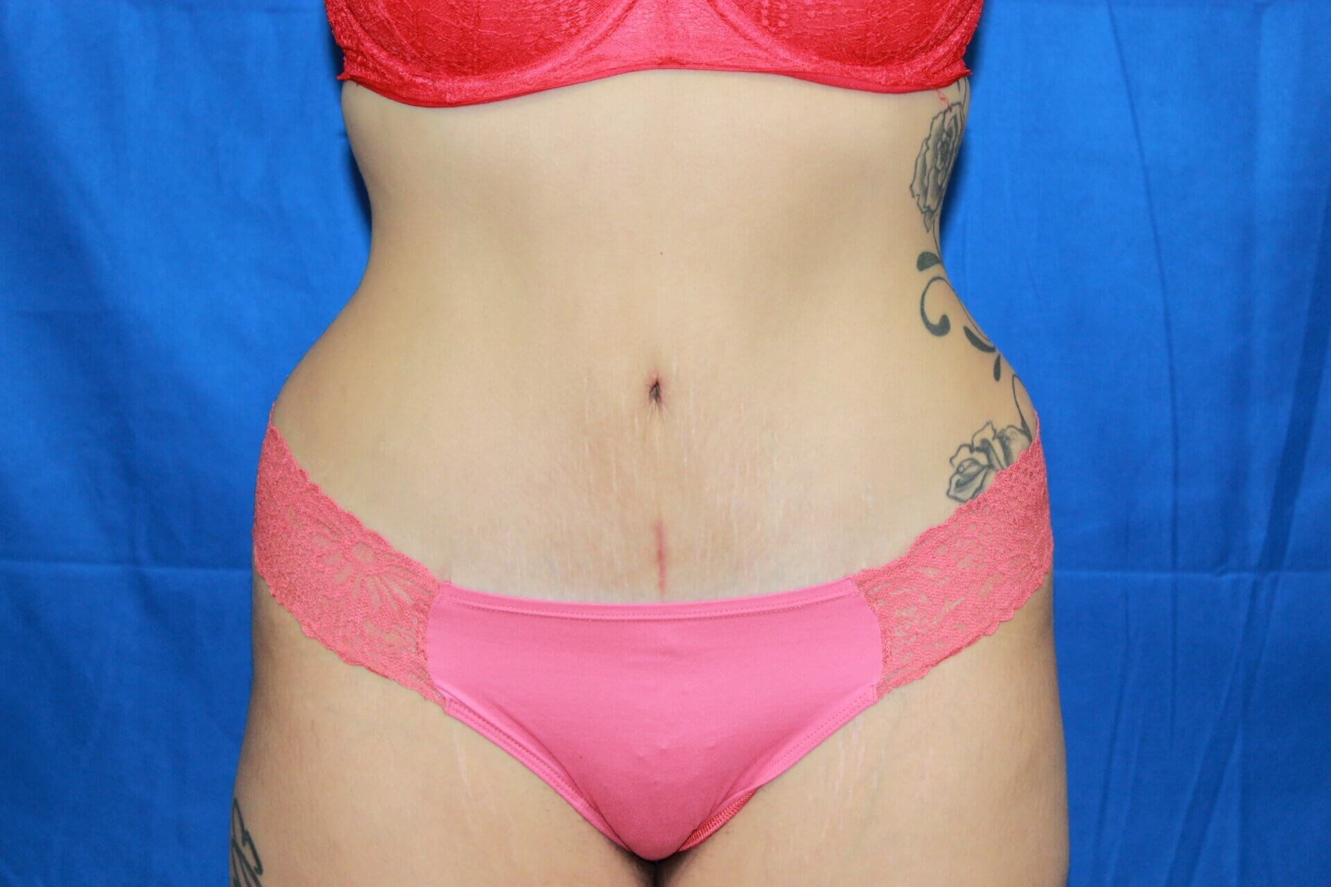 Tummy Tuck - Front After