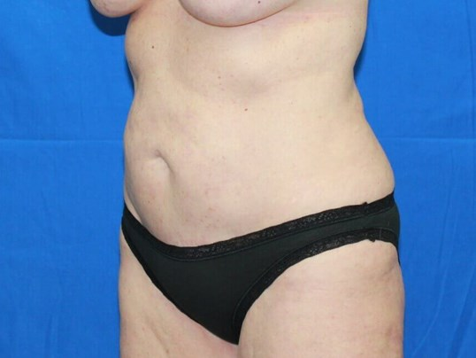 Revision Abdominoplasty Before