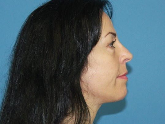 Facelift and Necklift Side Result