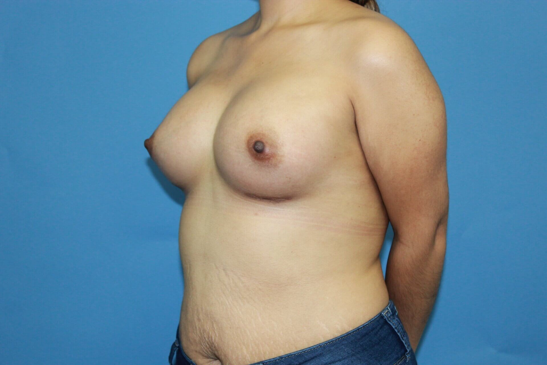 Hispanic Breast Augmentation After