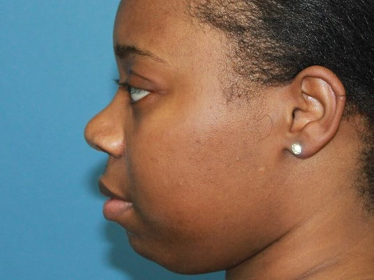 Ethnic Rhinoplasty After