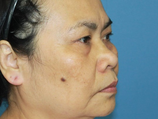 Asian Rhinoplasty Before