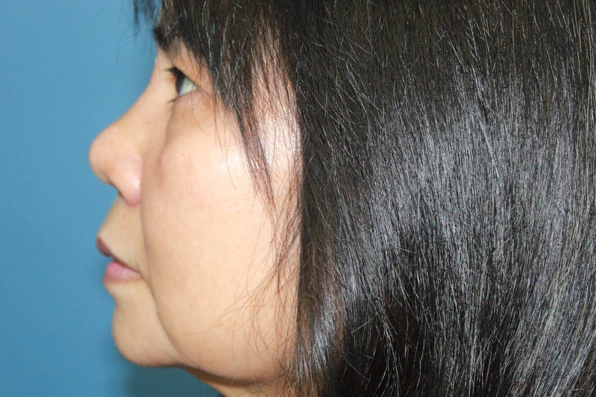 Asian Rhinoplasty After