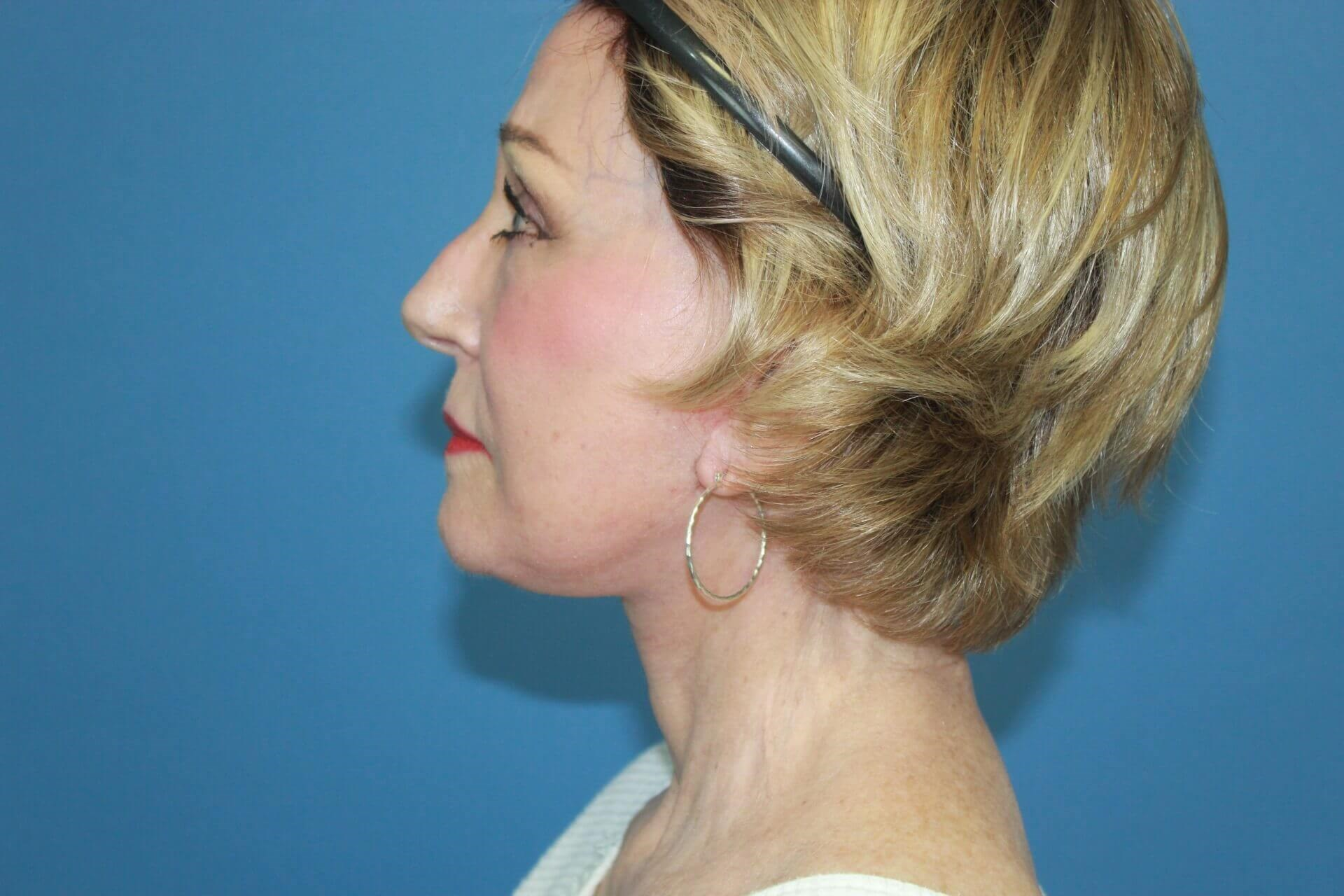 Secondary Facelift & Necklift After