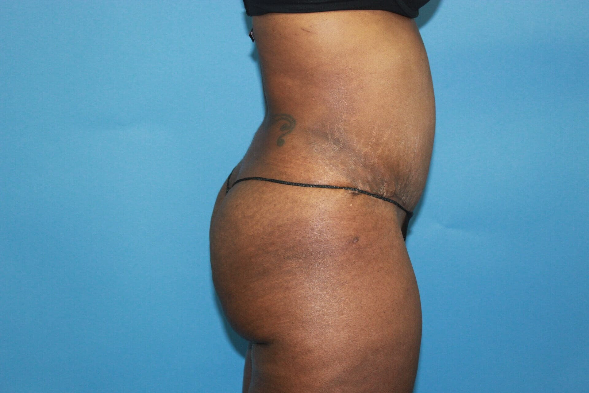 Tummy Tuck & Mommy Makeover After