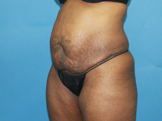 Tummy Tuck & Mommy Makeover Before