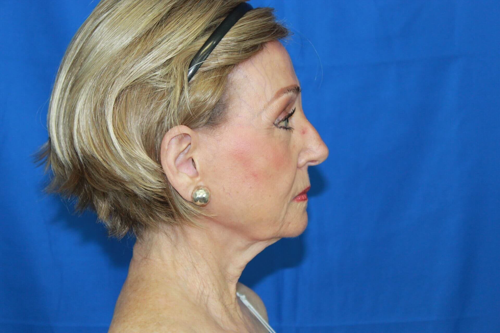 Secondary Facelift & Necklift Before