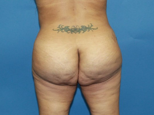 Revision Brazilian Butt Lift After