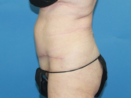 Revision Abdominoplasty After