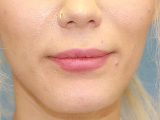 Lip Fillers Before