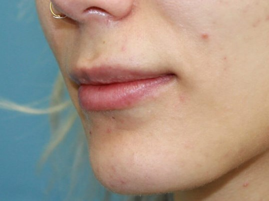Lip Fillers After