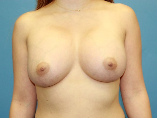 Transaxillary Breast Aug After