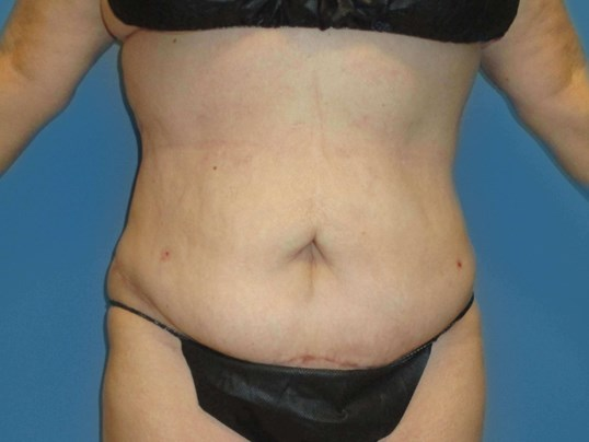 Liposuction w/ Mini- Tummytuck After