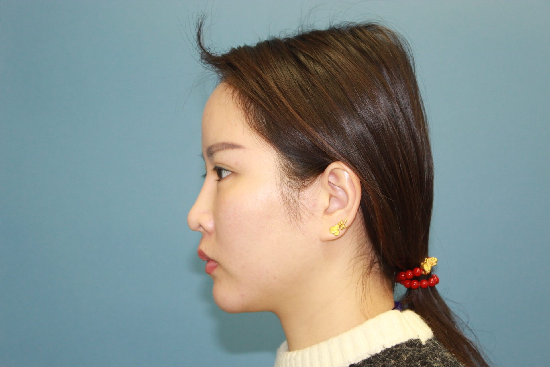 Asian Revision Rhinoplasty Before