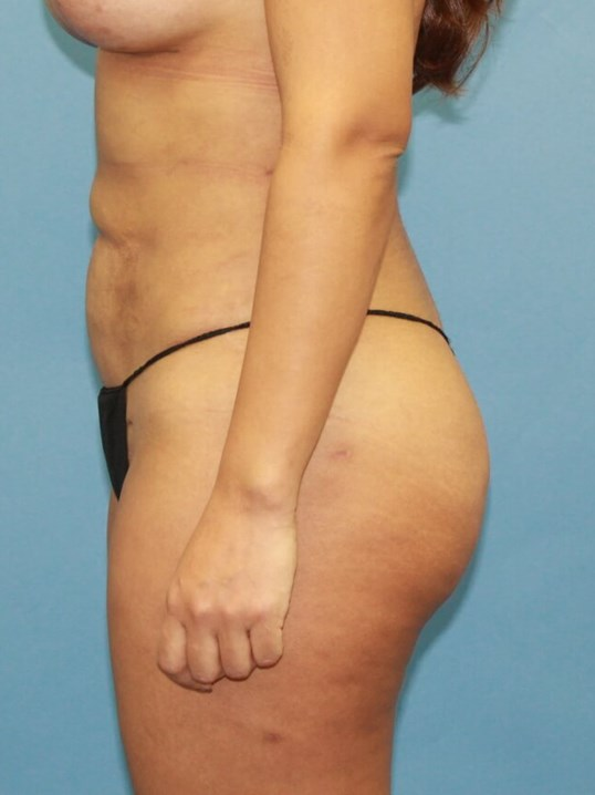 Liposuction and BBL After
