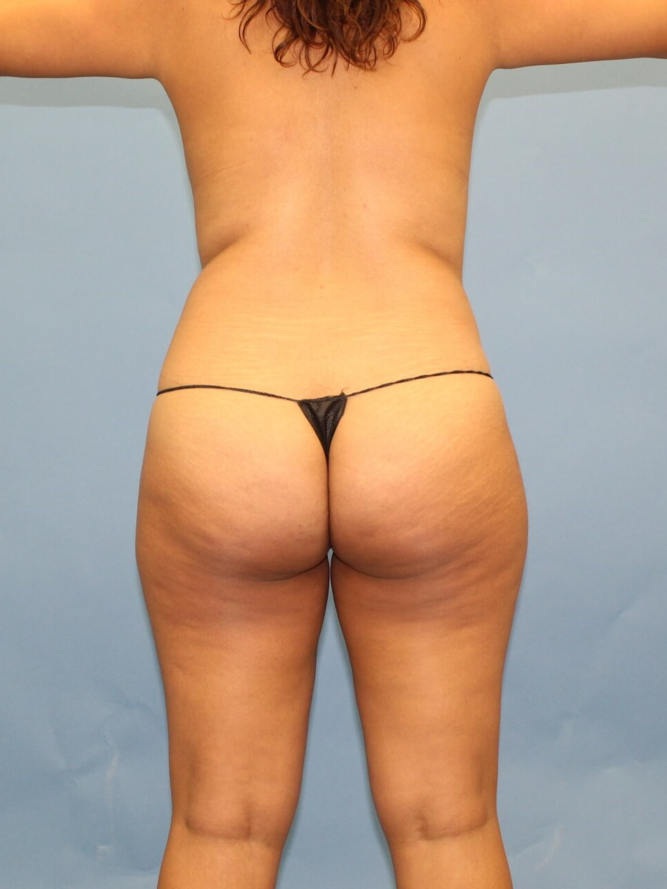 Liposuction and BBL Before