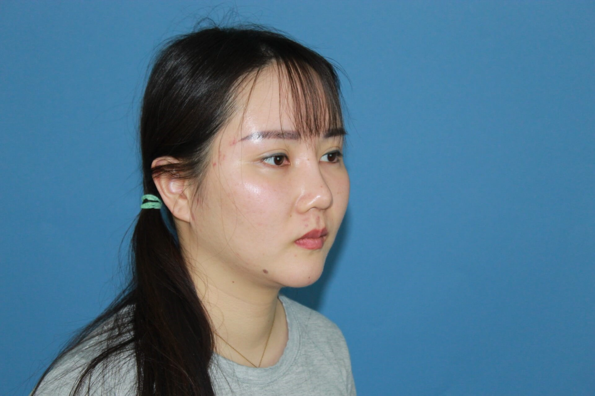 Asian Revision Rhinoplasty After